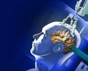 Leczenie guzów mózgu w Izraelu – innowacyjne metody