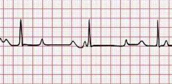 Was ist AV-Block? AV-Block: Ursachen, Symptome, Diagnostik und Therapie