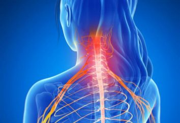 Radikulopathie – was ist das? Radikulopathie: Symptome und Behandlung