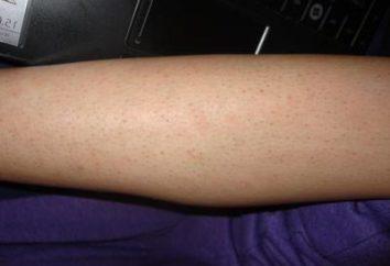 Che cosa succede se radicato peli sulle gambe?
