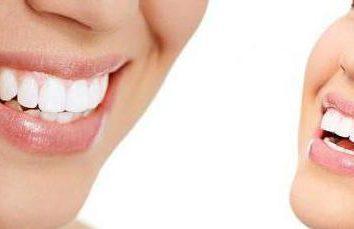 Aligneurs: avis de kappa pour l'alignement des dents