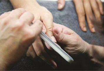 Jak usunąć przeszczep gwoździa prawidłowo