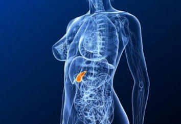 Cause e sintomi di calcoli biliari