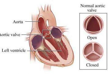 Aortenklappe 1, 2, 3 Grad: Anzeichen, Symptome, Diagnose, Behandlung von