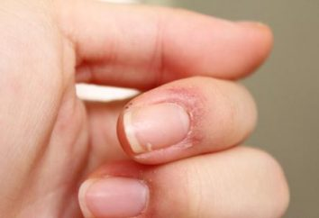 Agrietada piel de los dedos sobre las uñas: causas y tratamiento. La piel agrietada en los dedos de los pies