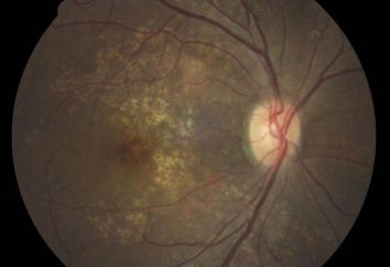 Angiosclerosis siatkówki – co to jest? Niebezpieczne wysokie ciśnienie krwi?