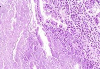 Yersiniosi. Sintomi, diagnosi e trattamento