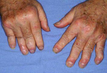Symptome und Behandlung von Psoriasis-Arthritis