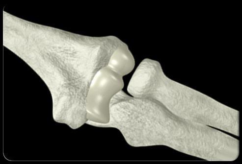 Selbstmassagetechnik mit osteochondrose des unteren rückens