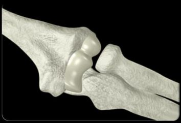 Chroniące przed chondropatią osteochondroza. Nowe chondropatią generacji. Chroniące przed chondropatią – maść