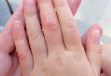 Artrite delle dita, i suoi sintomi, il trattamento e metodi di prevenzione