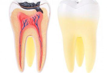 pulpe dentaire – quel est-il? Pulpites chez les enfants des dents primaires: Causes, symptômes et traitement