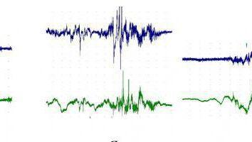 EGR (rheovasography) kończyn dolnych: w szczególności, zasady i reguły dekodowania