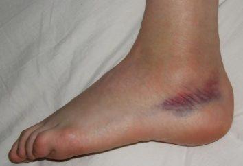 Bez podania przyczyny siniaki na nogach, co robić?