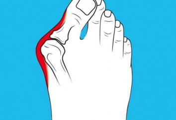 Le traitement de l'os sur le pouce. valgus du gros orteil: le traitement