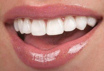 Plastikowe korony na przednich zębach: Wskazania, opinie, zdjęcia