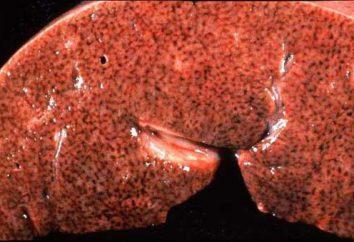 Muscat Leber: Anatomie, Histologie, patomorfologija