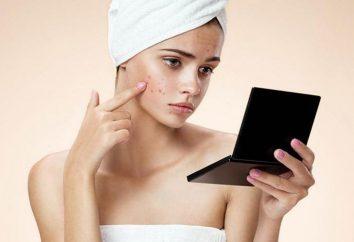 Problemi con la pelle: cause e il trattamento. mascherina con carboni attivi