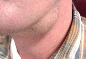 Gruczolak gruczołu śliny: przyczyny, objawy i leczenie