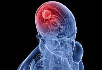 È il cancro al cervello trattata? La lotta per la vita!