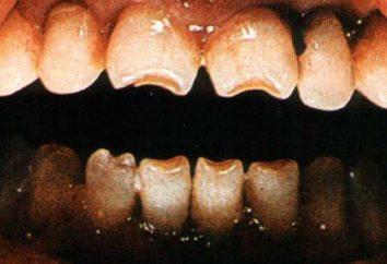 Hutchinsona zęby: przyczyny, opis kształtu i budowy, zdjęcia