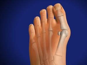 Rosnące kości w stopie: przyczyny, objawy, leczenie