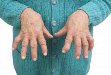 Osteoarthritis des Fingers: Symptome und Behandlung
