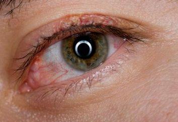 Los síntomas de la blefaritis y tipos de enfermedades