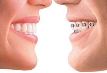 Pour savoir comment obtenir un beau sourire, si les dents sont les courbes