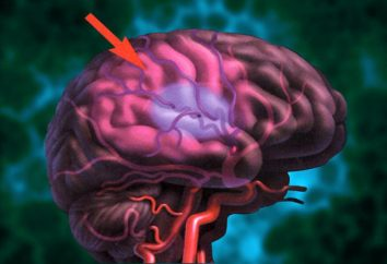 apoplexie: la prévention. Remèdes populaires pour la prévention des accidents vasculaires cérébraux