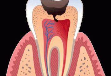 ¿Qué pasa si el diente duele cuando se hace clic en él?