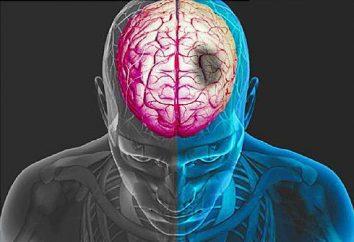 Jak rozpoznać udar mózgu w odpowiednim czasie?
