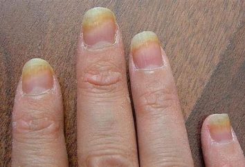 Pilz auf den Nägeln der Hände: Beschreibung der Krankheit und Behandlung