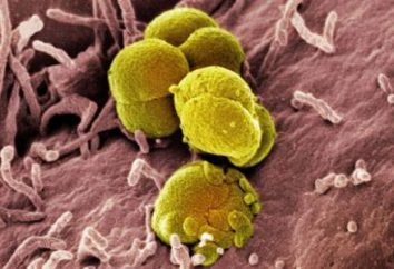 Choroby, choroby przenoszone drogą płciową, ich klasyfikacja