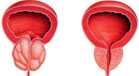 verkalkung der prostata behandlung