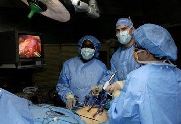 Sanfte Chirurgie – Laparoskopie