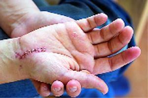 Die Naht wird nach der Operation behandelt? Tipps und Anleitungen