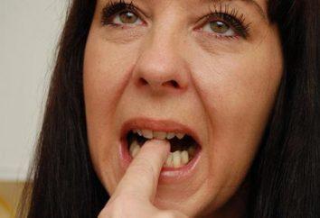 Warum Zahnschmerzen Zahn nach der Behandlung?