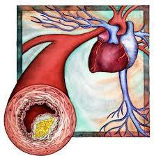Jak obniżyć poziom cholesterolu środków ludowej