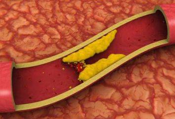 Taux de cholestérol élevé – une menace pour la vie
