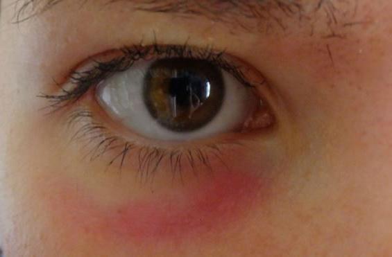rougeur sous les yeux homme