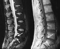 Protrusión: ¿qué es? protrusión del disco: Tratamiento