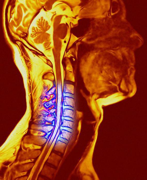 cinnarizina pentru tratamentul osteocondrozei cervicale