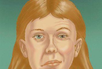 Jaka jest różnica między zapaleniem nerwu nerwowego twarzy?