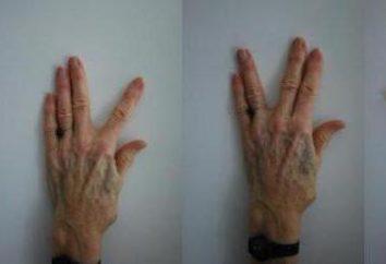 Ćwiczenia terapeutyczne: ćwiczenia na palcach, do szczotek