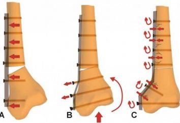 Wbijanie gwoździ – co to jest? Chirurgiczne rozmieszczenia fragmentów złamanej kości za pomocą różnych struktur mocujących