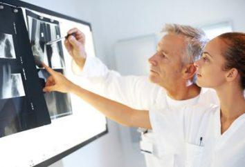 Fléau de l'humanité – ostéochondrose. Les symptômes de l'arthrose
