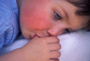 Punto rosso sulla guancia del bambino: cause, manifestazioni e caratteristiche del trattamento