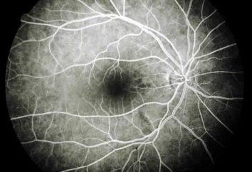 Causas, síntomas y tratamiento de la angiopatía retinal