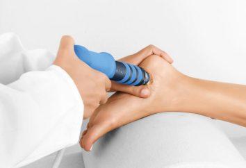 Leczenie pięty pobudza terapię fal uderzeniowych: przegląd. Leczenie ostróg pięty środków ludowej i leków